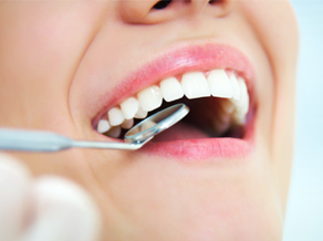 Components of Preventive Dental Care in Wilton Manors