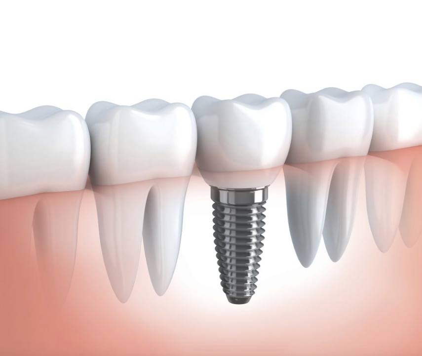 Things to Expect During a Dental Implant Procedure – Wilton Manors, FL