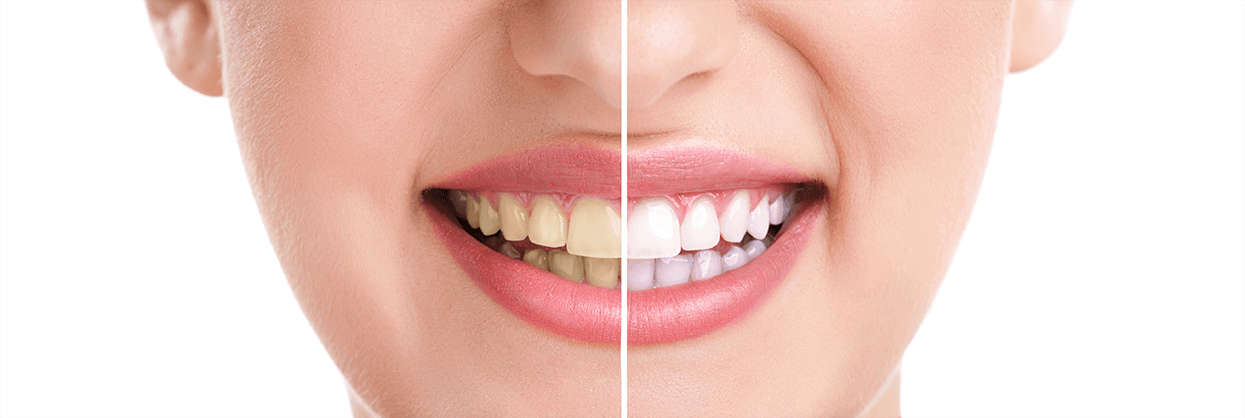 Teeth Whitening in Wilton Manors