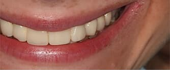 after dental implants and EMAX crown procedures