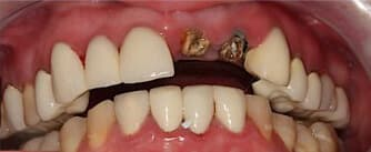 before dental implants and EMAX crown procedures